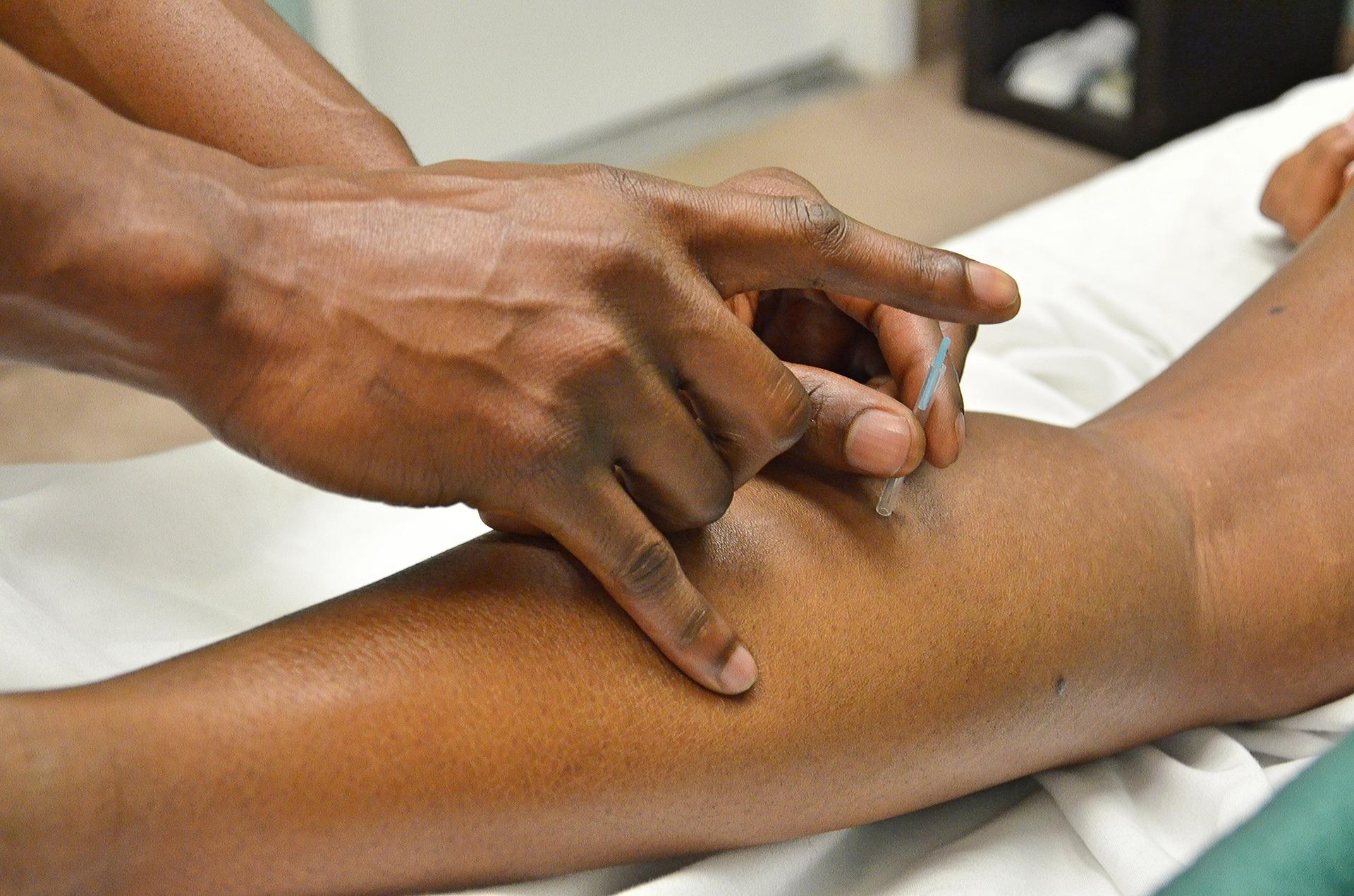agopuntura e sensazioni