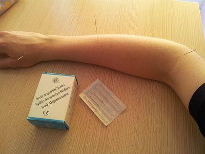 azione immediata dell'agopuntura