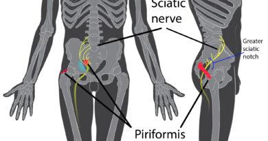 dolore in agopuntura