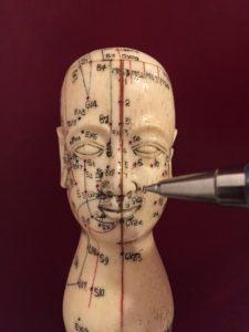 cefalea in medicina cinese