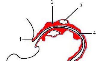 artrosi in medicina cinese