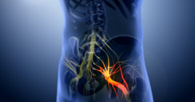 Sciatica e agopuntura